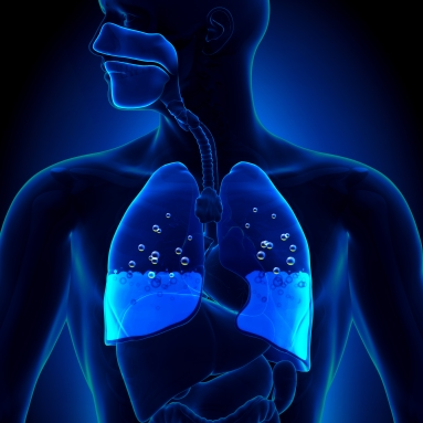 Pulmonary Edema.jpg